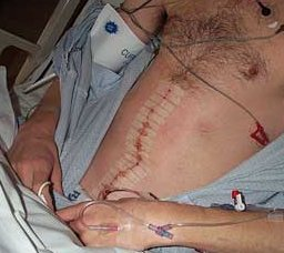 Tom Green's RPLND incision